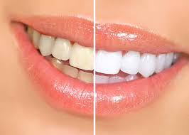 Photo: Dents après restauration avec des facettes