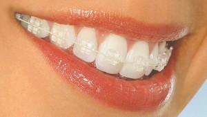 Photo: Bretelles pour l'alignement des dents