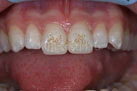 Photo: La présence de taches sur les dents de devant