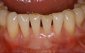 facettes sur les dents inférieures avant