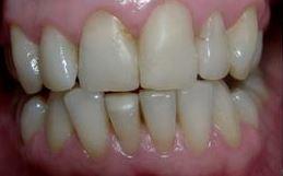 facettes pour dents inférieures do1