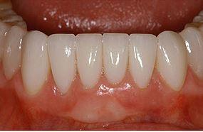 facettes sur les dents inférieures après