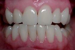facettes sur les dents inférieures après 1