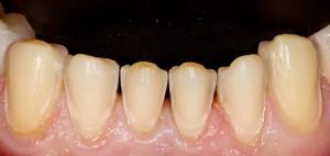 Photo: Dents inférieures après la préparation des facettes