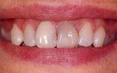 Photo: Assombrissement de l'émail des dents