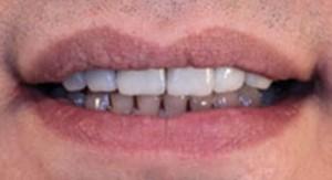 après l'installation sur les dents supérieures
