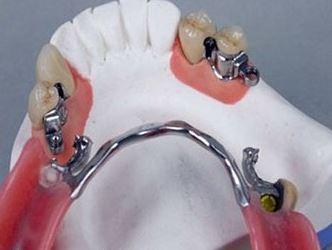 Photo: Éléments de fixation de la prothèse de fermoir sur les dents