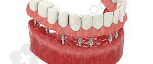 implantation basale