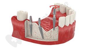 implanti-na-gevatelnie-zubi