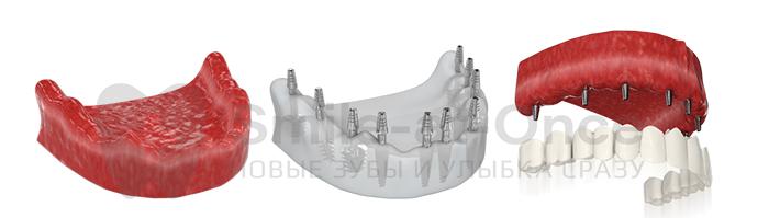 implantation dentaire basale