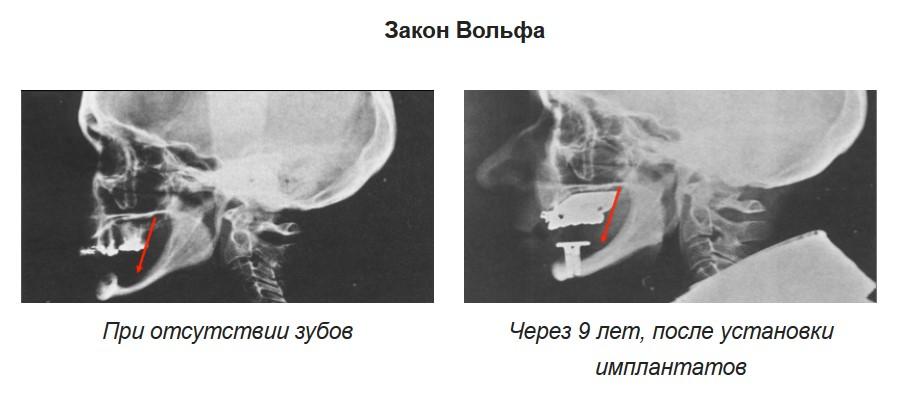 implants réparent l'os